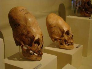 Annunaki - elongated skulls